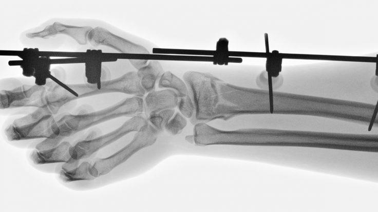 fluoroscopy-min-1-1-736x414
